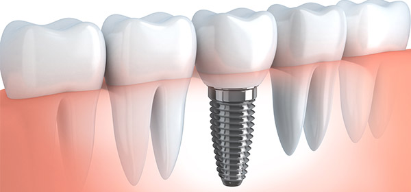 dental-implants-Thousand-Oaks