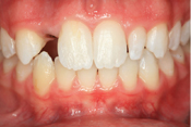 Before Dental Implants before and after dental implant thousand oaks ca