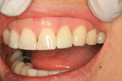 Before and after dental implants thousand oaks ca