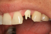 Before crown is attached to implant - before and after dental implants thousand oaks